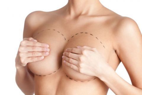 CONTRALATERAL PROPHYLACTIC MASTECTOMY AND SIMULTANEOUS BREAST RECONSTRUCTION WITH IMPLANTS AFTER ONE SIDED BREAST CANCER: ANALYSIS OF 12 CASES IN CONTEXT OF THE CURRENT TRENDS