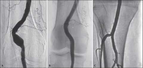 RARE PRESENTATION OF SYMPTOMATIC BILATERAL PROXIMAL POPLITEAL ARTERY ANEURYSM